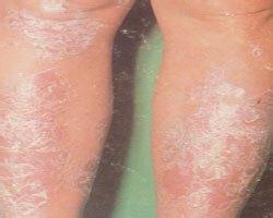冬季牛皮癣病情加重的原因是什么