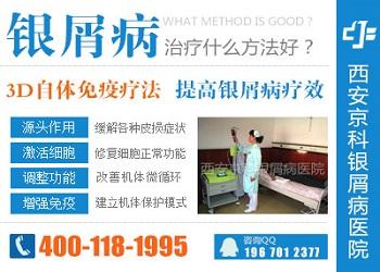 西安治疗牛皮癣医院