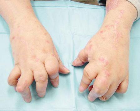牛皮癣的皮疹症状有哪些