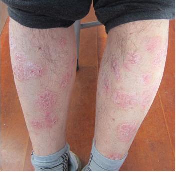 哪些是牛皮癣患病的初期症状
